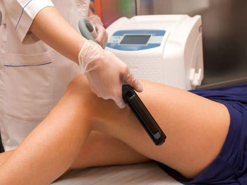 beneficios de la depilacion laser