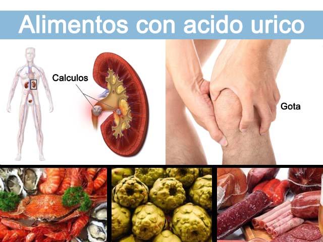 Alimentos prohibidos para el ácido úrico y consejos para la hiperuricemia