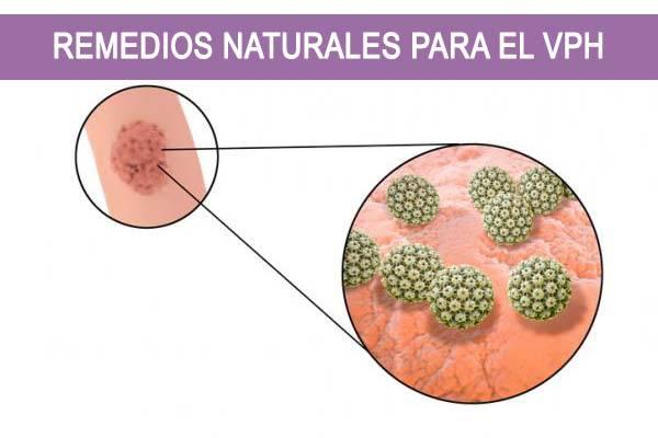 Remedios Naturales para el VPH